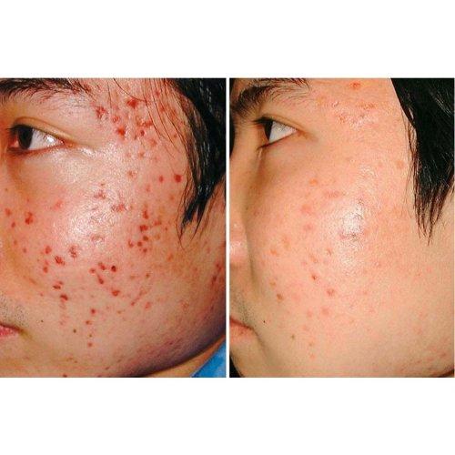 Korea Jaminkyung Crema Caracol Snail Cream Reduce Scars Acne