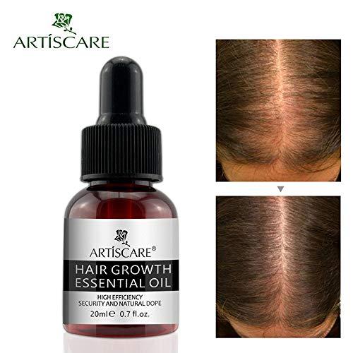 JonerytimeNatural Hair Growth Essence Oil Liquid Fast Hair G