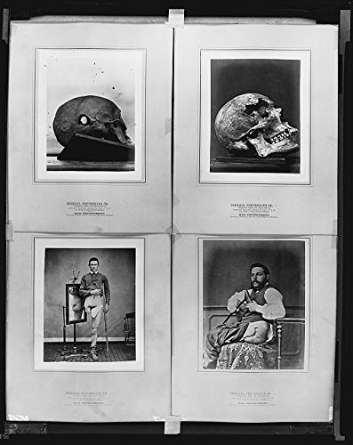Vintography HistoricalFindings Photo: American Civil War,Surgeon General's Office,War Department,Army Medical Museum by Vintography