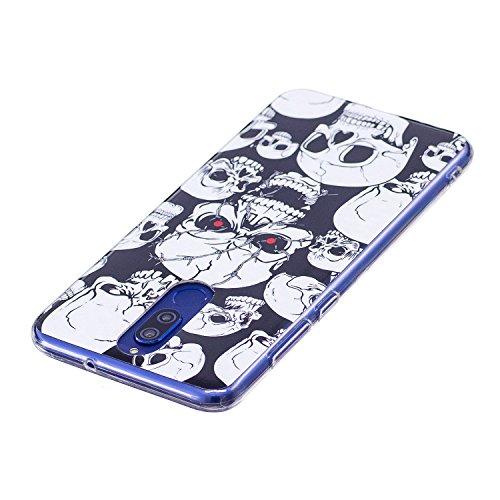 Funda para Huawei Mate 10 Lite , IJIA Noctilucent Adorable Perro TPU Silicona Suave Cover Tapa Caso Parachoques Carcasa Cubierta Soft Shell Case para Huawei Mate 10 Lite (5.9) XS37