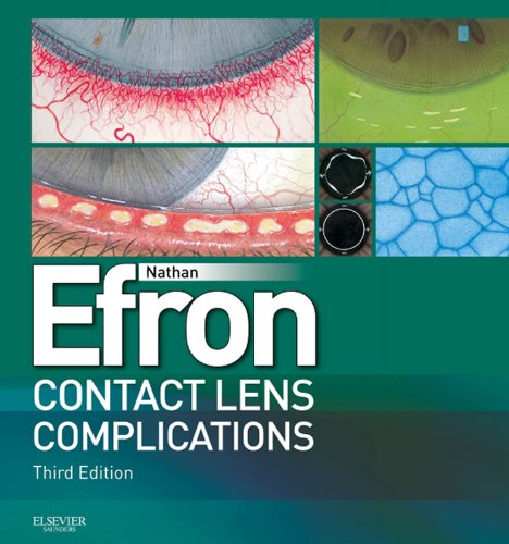 Contact Lens Complications E-Book