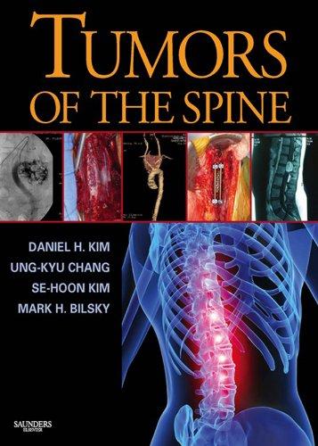 Tumors of the Spine Pdf