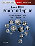 img - for ExpertDDx: Brain and Spine, 2e book / textbook / text book