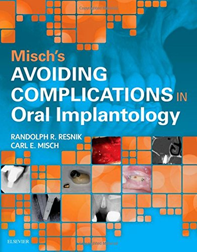 Misch carl e the best amazon price in savemoney mischs avoiding complications in oral implantology fandeluxe Choice Image