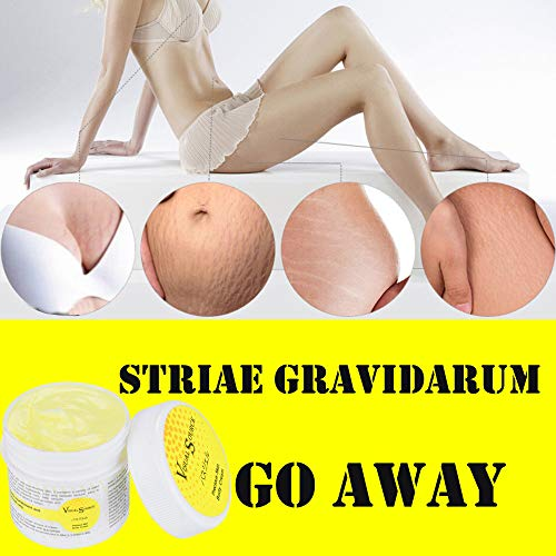 Birdfly Repair Stretch Marks Removal Cream Remover Pregnancy On Breast Treatment Lotion Acne Scar Fat Striae Gravidarum 30g -