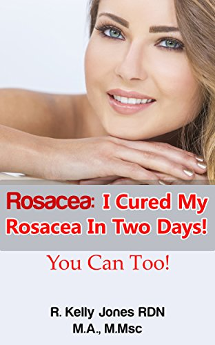 Rosacea I Cured My Rosacea In Two Days You Can Too Kindle