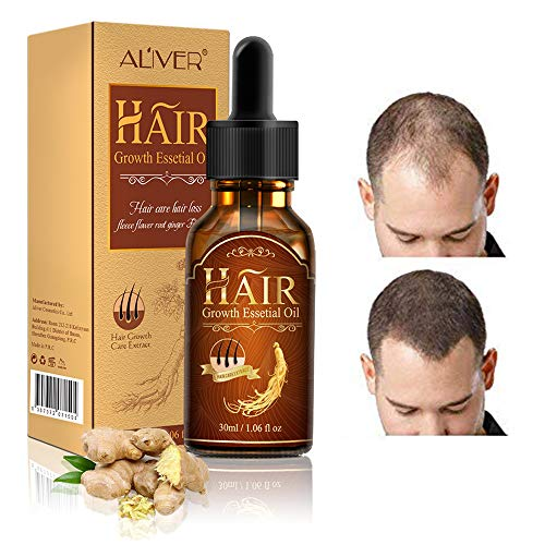 Hair Growth Serum,Hair Loss &Hair Thinning Treatment,Hair Serum,Stimulates New Hair Growth, Promotes Thicker, Fuller and Faster Growing Hair (Best Hair Regrowth Treatment In India)