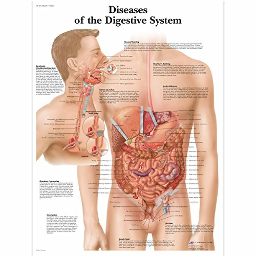 Gifts Delight Laminated 24x24 Poster: Anatomical Charts and Posters - Anatomy Charts - Diseases of The Digestive System Paper Chart