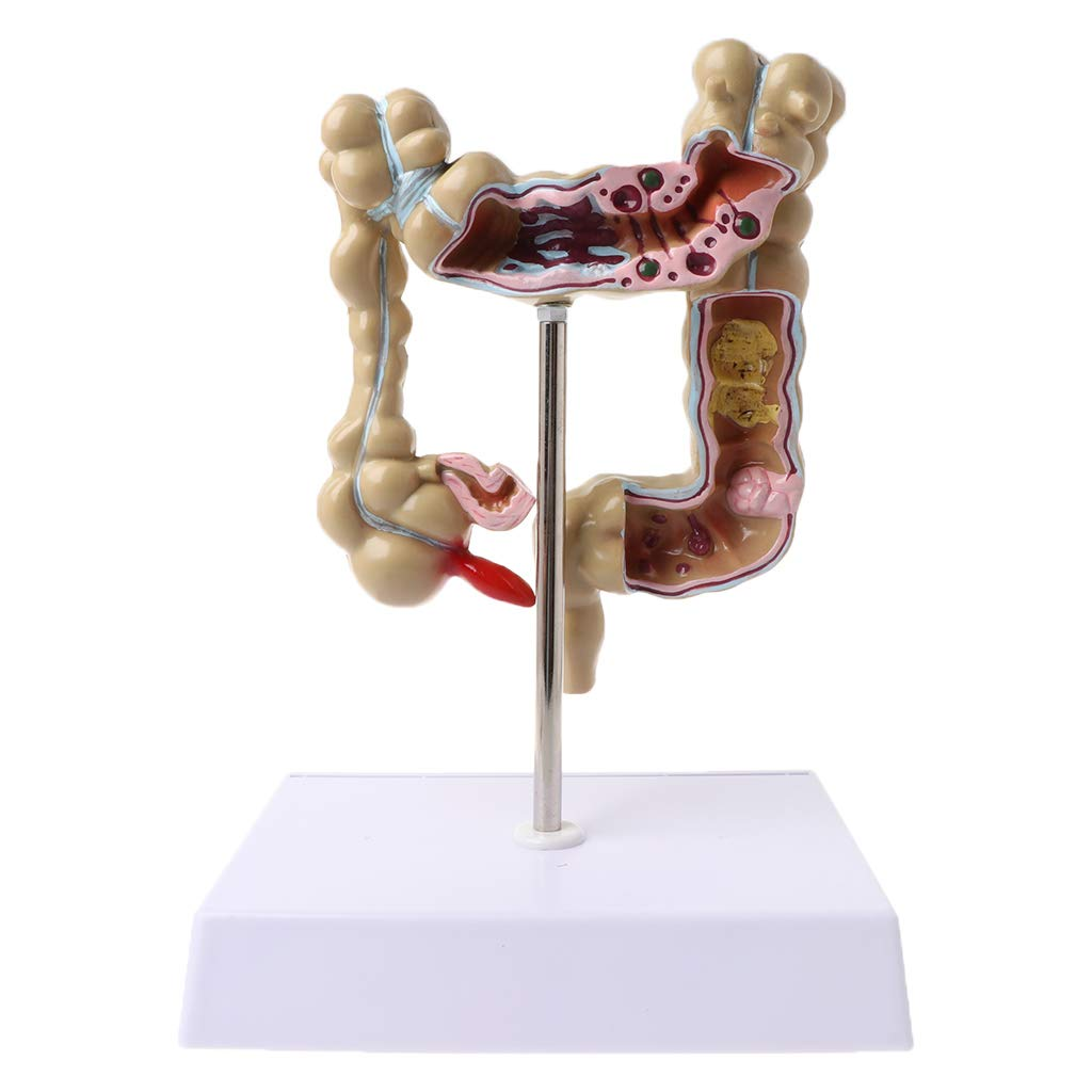 Huilier Human Colorectal Lesion Model Pathological Anatomy Colon Diseases Intestine Medical Teaching Learning Tool