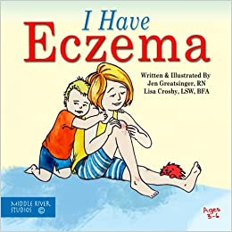 I Have Eczema (Coping with Chronic Conditions for