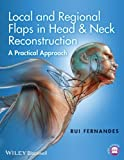 Local and Regional Flaps in Head and Neck Reconstruction : A Practical Approach, Fernandes, 1118340337