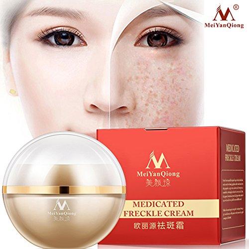 Freckle Cream Whitening Anti-aging Moisturizing Cream Melanin Freckle Speckle Removing Skin Care ()