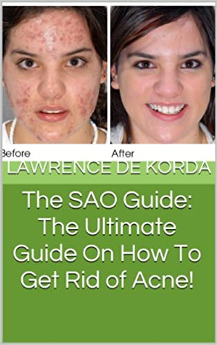 The SAO Guide: The Ultimate Guide On How To Get Rid of Acne!