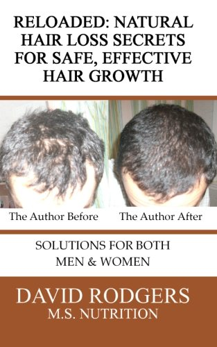 Reloaded: Natural Hair Loss Secrets for Safe, Effective Hair Growth