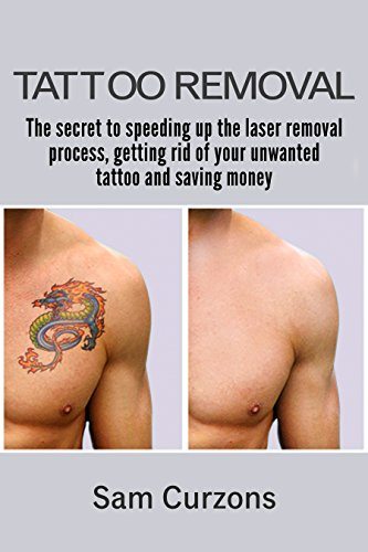 Tattoo Removal Process >> Amazon Com Tattoo Removal The Secret To Speeding Up The Laser