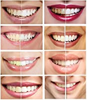 Ismile Teeth Whitening Kit With Powerful Red Blue Led Light 35 Carbamide Peroxide Pens 3 Pack And Desensitizing Gel Pen For Sensitive Teeth Adapters For Iphone Android Usb Hismile