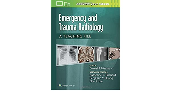 Emergency and trauma radiology a teaching file lww teaching file emergency and trauma radiology a teaching file lww teaching file series 9781469899480 medicine health science books amazon fandeluxe Choice Image