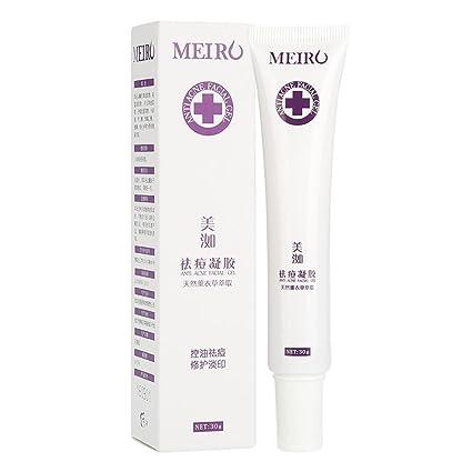 Sonew Crema para el tratamiento del acné, crema hidratante facial de lavanda aceite balance de