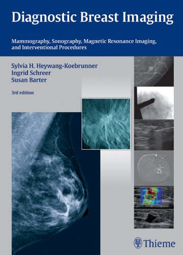 Diagnostic Breast Imaging Mammography, Sonography, Magnetic Resonance Imaging, and Interventional Procedures (3rd 2014) [Heywang-Koebrunner, Schreer & Barter]