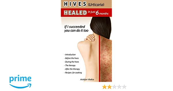 HIVES(Urticaria)HEALED In just 6 months: If i succeeded you do it