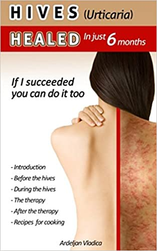 HIVES(Urticaria)HEALED In just 6 months: If i succeeded you