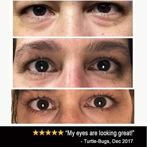 51vMp27FBnL - Eye Cream Moisturizer (1.7oz) 94% Natural Anti Aging Skin Care