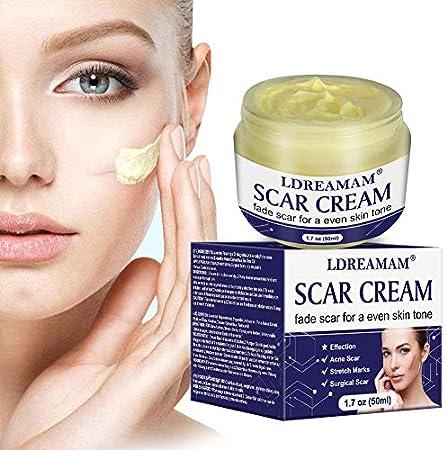 Este tratamiento de reducción de la cicatriz funciona tanto en las más recientes como en aquellas má