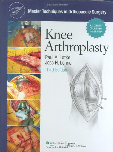 Download Master Techniques in Orthopaedic Surgery: Knee Arthroplasty Pdf