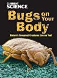 Bugs on Your Body, John Perritano, 1433920581