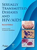 img - for Sexually Transmitted Diseases and Aids, 2nd Edition book / textbook / text book