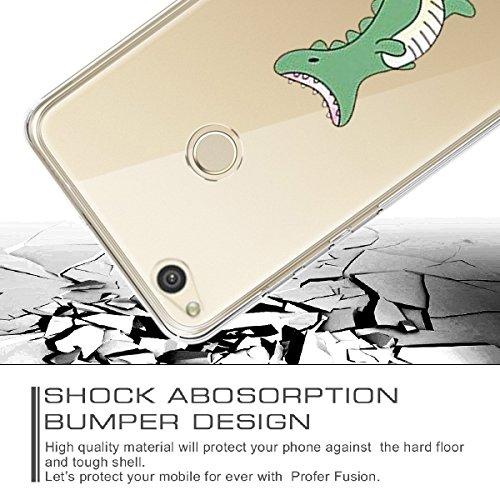 Silicone Lite Housse 3 TPU Anti Vanki Motif Rayure P8 de Protection 2017 Souple Soft Choc Cratif P8 Lite Coque Transparente Gel Case Anti Cover Huawei Etui 2017 pour Huawei zqxwf6w0F