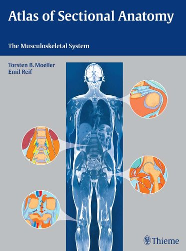 Atlas of Sectional Anatomy The Musculoskeletal System (1st 2009) [Moeller & Reif]