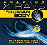 Amazing X-rays: The Human Body