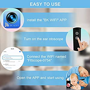 Slimerence Upgraded Wireless WiFi Otoscope Ear Camera, Earwax Removal Tool with AR3.9mm HD Ear Endoscope, Digital Ear Inspection Otoscope Cleaner for Android, iOS Smartphone and Window Black (Color: Black)