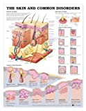 The Skin And Common Disorders Anatomical Chart, Anatomical Chart Company Staff, 1587798891