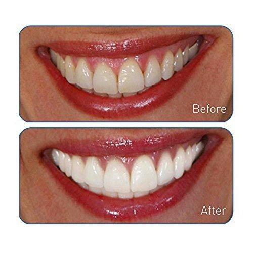 Amazon Com Go Smile On The Go Teeth Whitening Pen Clinically