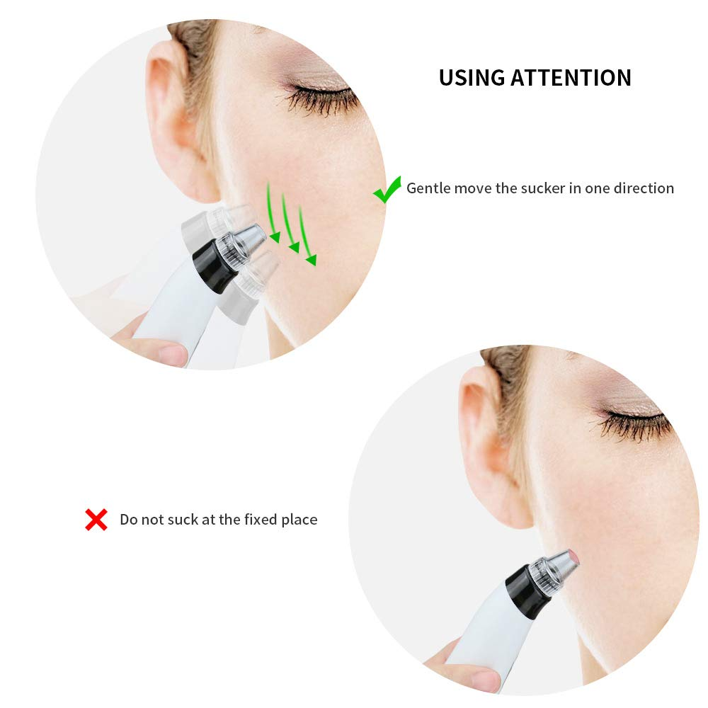 Blackhead Remover, Zdatt Pore Vacuum Electric Blackhead Vacuum Extractor Clean Tool - Comedo Pore Extracotr Beauty Device with 5 Probes Microdermabras