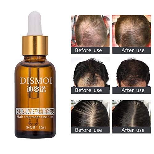 Fullfun DISMOI Hair Growth Restoration Essence Liquid Fast Dense Hair Growth Natural Hair Loss Treatment for Men women