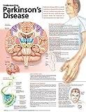 Understanding Parkinson's Disease Anatomical Chart