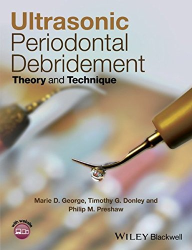 Ultrasonic Periodontal Debridement: Theory And Technique