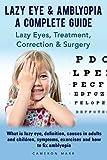 Lazy Eye & Amblyopia. Lazy