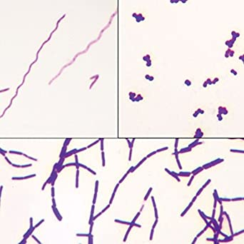 bacteria types slide separate smears gram stain science lab