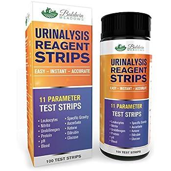 Amazon.com: Urine Specific Gravity Kit: Industrial & Scientific