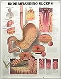 Understanding Ulcers Anatomical Chart, Anatomical Chart Company Staff, 1587793709