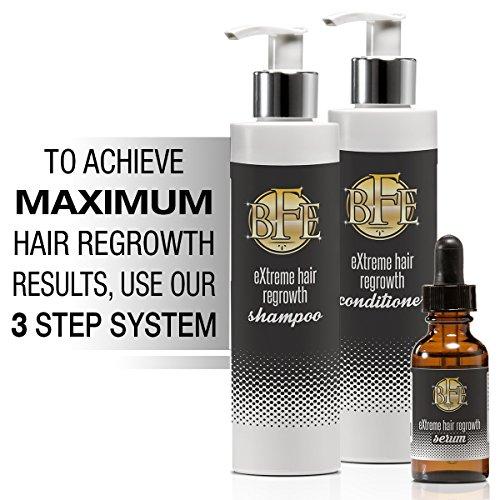 Hårvækst shampoo-Maximum Strength Dht Blocker For både mænd og kvinder af skønhed-3095