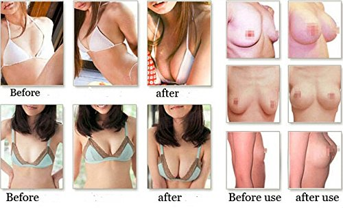 Breast cream before and after photos Breast Lift with Implants Worth It? Reviews, Cost