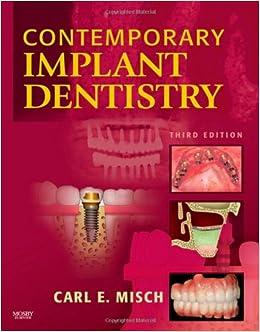 Contemporary Implant Dentistry, 3e: 9780323043731