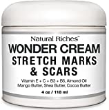 Stretch Marks & Scar Removal Cream, from Natural Riches - 4 oz - 100% Natural, Reduces the Appearances of Keloids, Pregnancy Stretch Marks and scars, helps in Firming & Tightening Skin