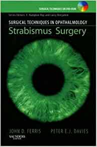 How to Take on Strabismus in Adults