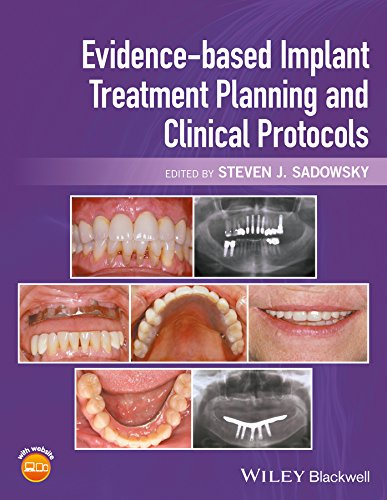 (Evidence-based Implant Treatment Planning and Clinical)